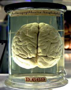 A brain in a jar.